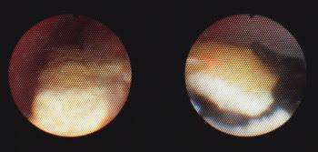 Holmium:YAG Laser in Clinical Urology | Features | Jul 2007