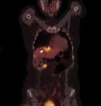 BNColon_PET-Scan.jpg