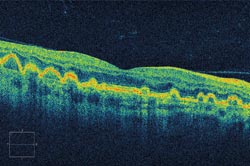 FeatOphthalmology_Fig-4.jpg