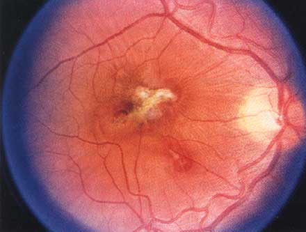 This retinal burn, caused by a Nd:YAG rangefinder, resulted in nearly complete vision loss.