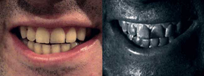 A left incisor repaired with dental resin. Left: color, right: near-UV.