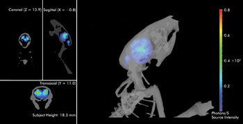 Dissecting The Anatomy Of 3 D Imaging Features Mar