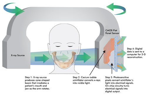 Cmos Technology For Digital Dental Imaging Features