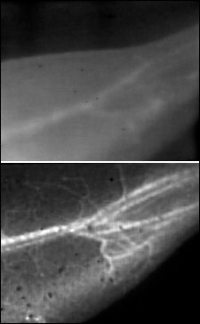 These images of a mouse's blood vessels show the difference in resolution between traditional near-infrared fluorescence imaging (top) and Stanford University's new NIR-II technique, which involves shining a laser over a living subject after water-soluble carbon nanotubes have been injected into its bloodstream.