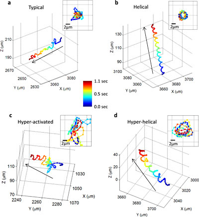 These images show, for the first time, that human male gamete cells swim primarily in four types of patterns.