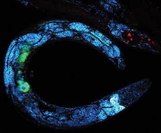 Multimodal image of a C. elegans worm