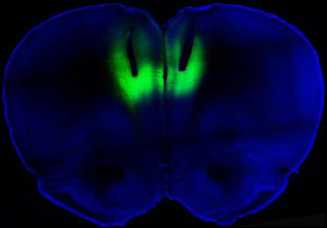 Researchers at the University of California, San Francisco, delivered laser light through fiber optic cables directed at the prefrontal cortex (shown here by their tracks) to modulate firing activity of neurons expressing light-sensitive molecules (shown in green fluorescence) to regulate cocaine-seeking behavior in rats. Courtesy of B.