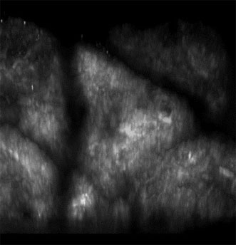3-D projection of a stack of 20 SHG images acquired within the dermis of a healthy subject.