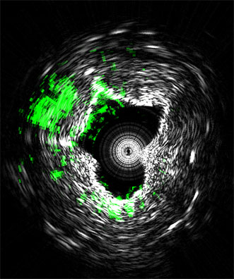 This cross-section of an artery shows lipid deposits in green.