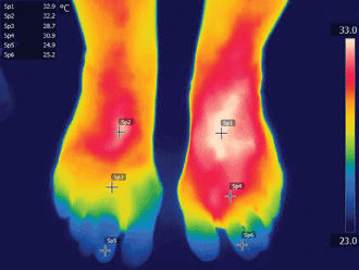 False-color thermal image with a microbolometer camera shows hotter (redder) and cooler (bluer)