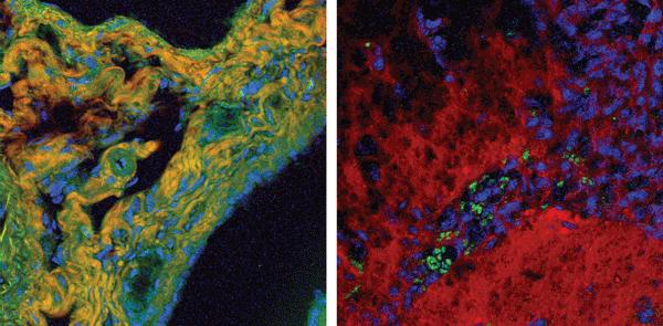 high-speed tissue imaging