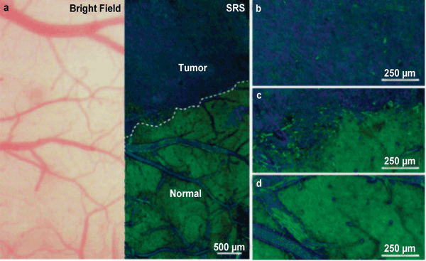 Comparison of a bright-field microscopy image of a mouse brain with stimulated Raman scattering (SRS) microscopy