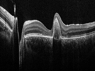 An OCT image of a human retina acquired with the Envisu C2300 SD-OCT system.