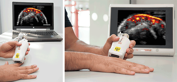 A handheld photoacoustic (PA) probe uses compact diode lasers to image several centimeters deep into tissue without contrast agents.
