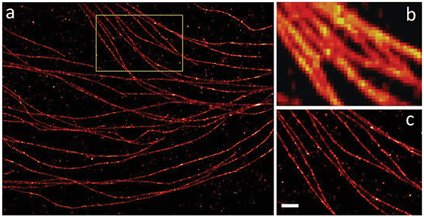 Stochastic microscopy imaging methods such as STORM deliver resolution levels far beyond the classical diffraction limit.