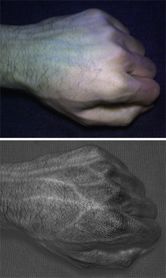 Compared to an image taken with a normal camera (top), a HyperCam image (bottom) reveals detailed vein and skin texture patterns unique to each individual.
