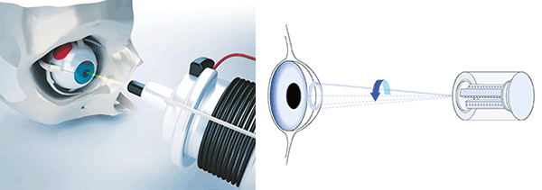 Precise positioning technology is used to steer lasers for eye surgery.