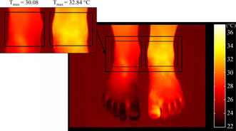 An example case of ankle joint inflammation showing that the maximum skin temperature around the inflamed joint is higher than in the noninflamed joint.