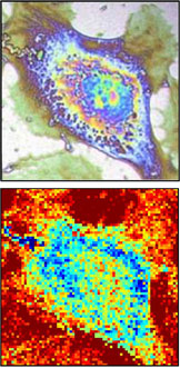 On the top, a classical phase-contrast image of a cell obtained via a standard microscope. On the bottom, a thermal image of the same cell recorded with a thermal imaging device.
