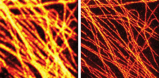 The effectiveness of STED is clear in this pair of images of fluorescently tagged microtubuli in mammalian cells