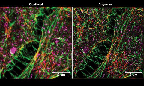 Conventional confocal microscopy compared to Airy scanning of HeLa cells.