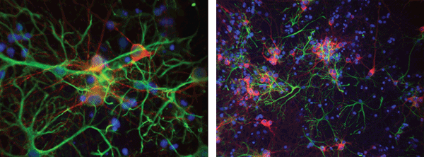 Images depicting neurons stained with multiple fluorophores and DAPI+FITC+Texas Red filter sets from Iridian Spectral Technologies.