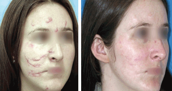 Lasers Make Their Marks On Skin And Tissue Procedures
