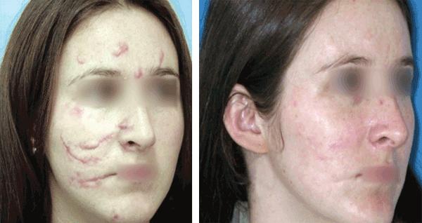 topical corticosteroid therapy for vitiligo