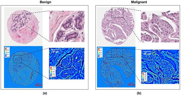 A comparison of stained brightfield microscopy (top row) and SLIM (bottom row) images and their respective abilities to show malignant and benign lesions.