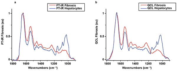 Averaged spectra for regions of interest corresponding to the hepatocytes and the fibrotic area on the FTIR image in Figure 3a.