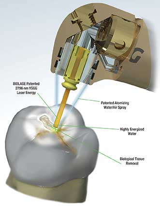 How a laser is used in dental treatment.