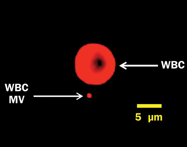A white blood cell (WBC) and a microvesicle (MV), labeled for surface protein CD45 and captured on a Millipore ImageStreamX imaging flow cytometer under 640-nm excitation.