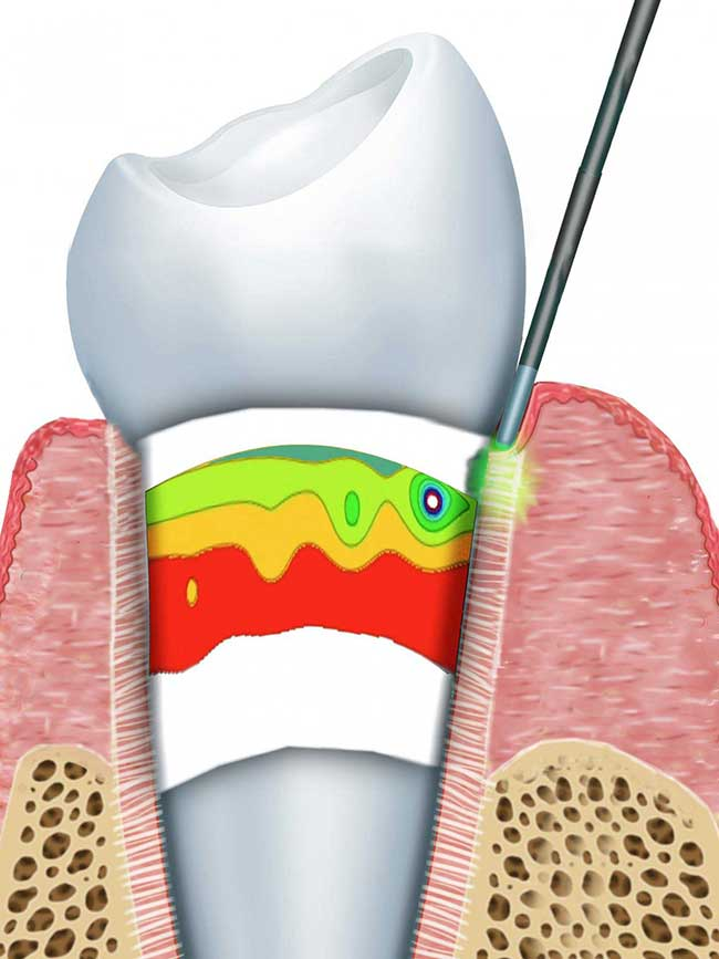 This is the cylindrical geometry of the periodontal ligament.
