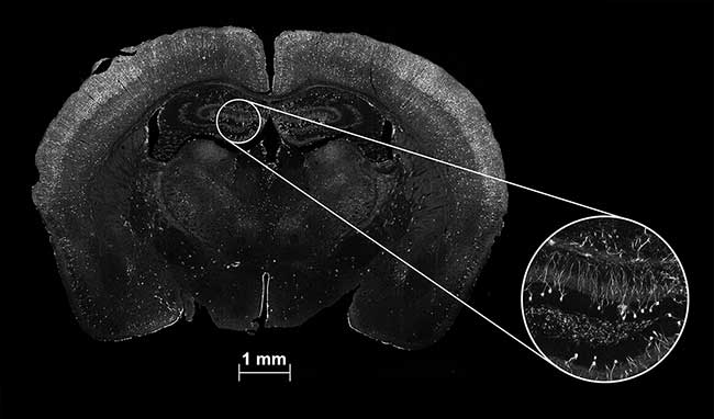 A whole brain section and deep zoom inset of a mouse brain with neurons activated during a stress test.