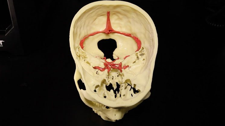 This 3-D print was produced by Mount Sinai's Medical Modeling Core.