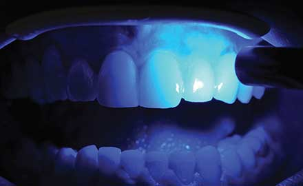 Poor analysis of nonlaser light from a dental curing lamp could result in dental restorations with incompletely cured restorative materials.