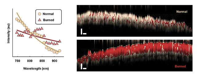 Average spectra backscattered from normal and burned tissues (left) are extracted with spectroscopic OCT. The plot reveals a difference in overall slope as well as oscillatory features in the burned tissue spectrum. Spectroscopic OCT images of normal and burned tissue (right) in live mice.