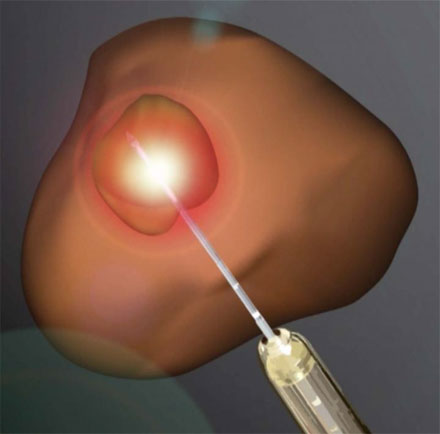 An illustration of how laser ablation is used to treat prostate cancer.