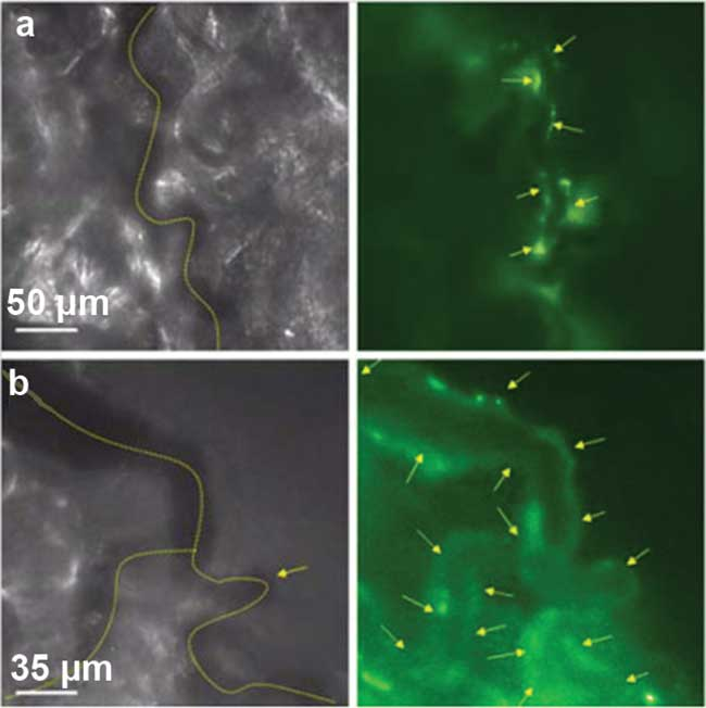 RGD-labeled paramagnetic quantum dots (RGD-pQDs) specifically target tumor blood vessels in in vivo microscopy of microvessels in tumor-bearing mice (C57Bl6) after intravenous injection of RGDpQDs