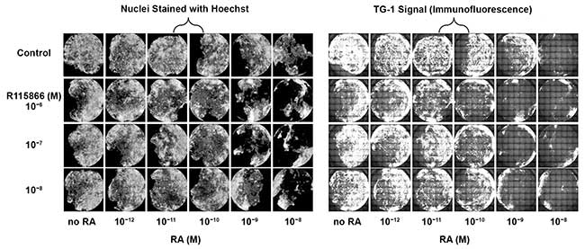 Differential response in human keratinocytes whole area of the wells scans of primary human keratinocytes in 96-well plates.