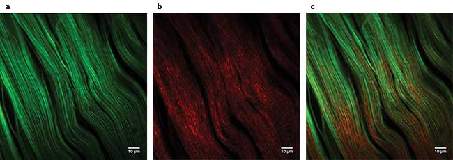 Forward- (a) and backward- (b)detected second-harmonic generation (SHG) signal and the composite (c) of (a) and (b) from a mouse knee. The elongated structure of collagen fibers is clearly visible in forward detection. Image taken at the Multiphoton Imaging Lab. Courtesy of Munich University of Applied Sciences.