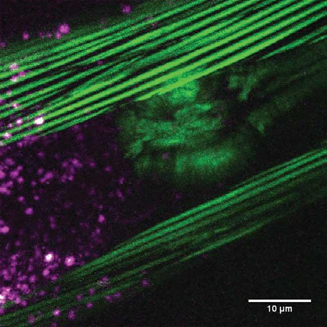 Projection of the three-dimensional multimodal image of the nematode Ceanorhabditis elegans.
