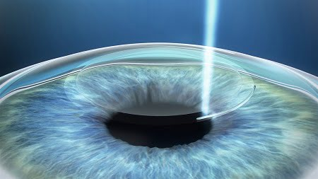 SMILE minimally invasive laser eye surgery, using advanced refractive technology from ZEISS, reaches 1M milestone worldwide