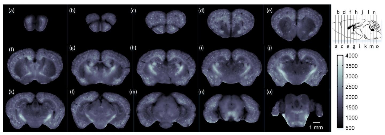 Whole brain imaging Alzheimers mouse model, Huazhong University.