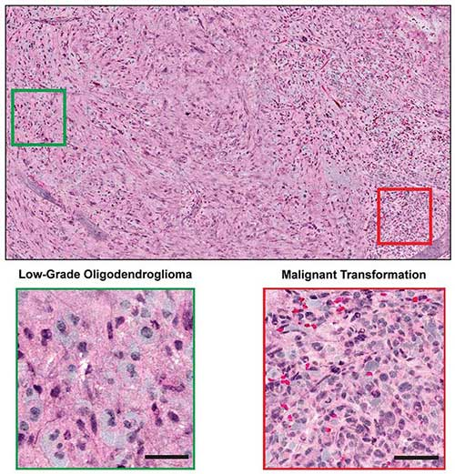 Combined with supervised machine learning, stimulated Raman histology by intraoperative SRS microscope effectively differentiated among diagnostic classes of brain tumors with 90 percent accuracy in neurosurgical patients.