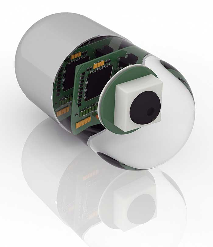 Added Intelligence Transforms Medical Sensors Into Diagnostic Devices