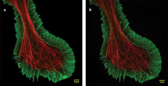 Superresolution (a) and confocal (b) images of a growth cone fixed sample showing F-actin (green) and microtubules (red).
