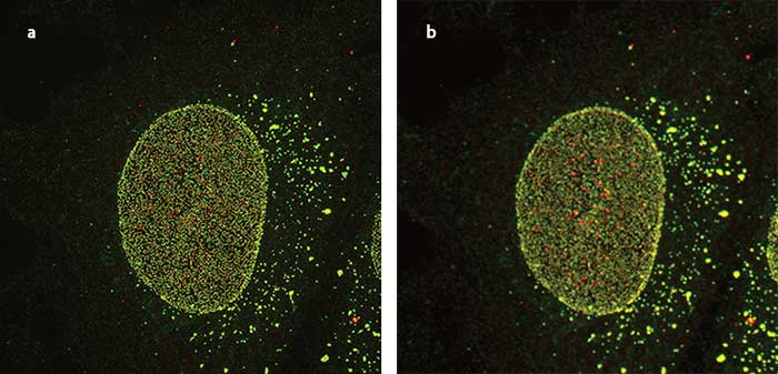 Nuclear pore imaged using supperresolution (a) and confocal (b) imaging.