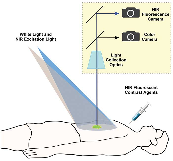 With fluorescence image-guided surgery,
