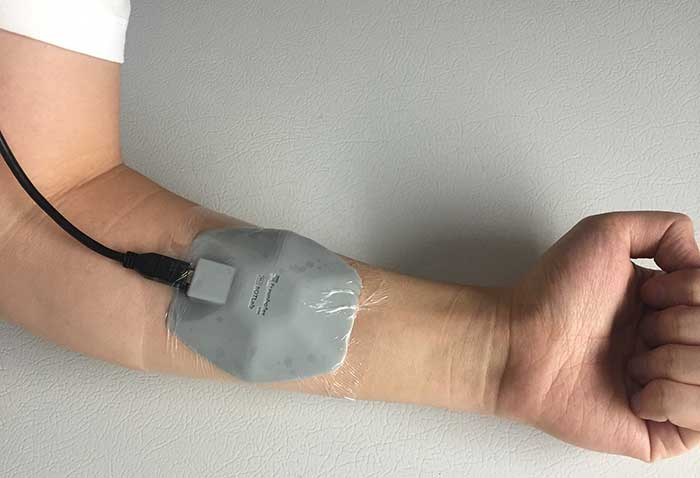 A new diffuse optical wearable probe developed at Boston University is designed to track tumor metabolism and changes in the blood during breast cancer treatment.
